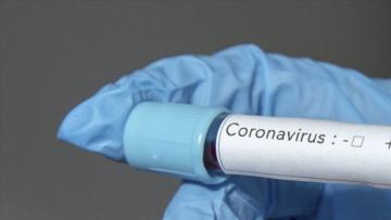 Koronavirüs yeni vaka sayısı açıklandı